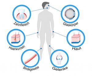 Glykosaminoglykane-synofit