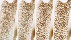 Knochengesundheit-Vitamin-K2-Synofit-Calcium-Plus